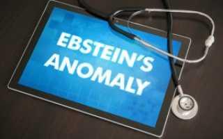 Аномалия Эбштейна — характеристика порока, как он лечится?