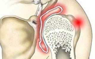 Артрит плечевого сустава – симптомы и лечение, стадии и разновидности болезни