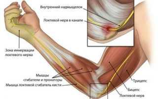 Тендинит локтевого сустава – этиология, симптомы, терапия