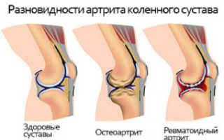 Ревматоидный артрит коленного сустава – симптомы и лечение заболевания
