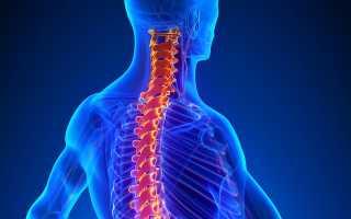 Чем опасен шейный остеохондроз – осложнения заболевания и причины их возникновения