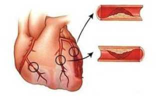 Трансмуральный инфаркт — характеристика, диагностика, лечение и реабилитация