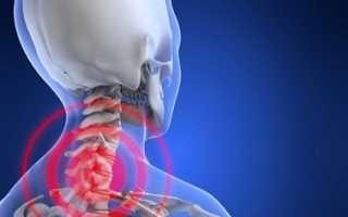 Лечение протрузий шейного отдела позвоночника – гимнастика, хирургическое лечение