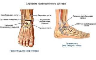 Лечение вывиха стопы – этиология, классификация, клиника, диагностика