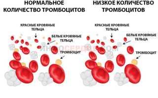 Тромбоциты по Фонио — преимущества методики, недостатки