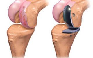 Замена коленного сустава – как проходит операция, виды операций, реабилитация