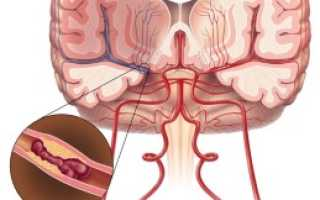 Инсульт – от чего бывает наибольшее количество осложнений и основные факторы возникновения