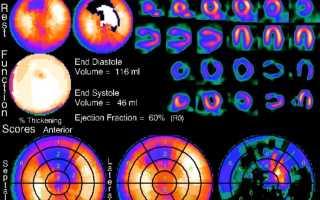 Диагностика инфаркта миокарда — аппаратные и лабораторные методы исследований