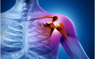 Перелом плечевого сустава – лечение и реабилитация, диагностика, классификация