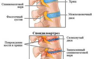 Спондилоартроз пояснично-крестцового отдела позвоночника – лечение уколами, классы лекарств