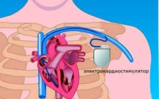 Водитель ритма сердца — функции сердца, методы лечения
