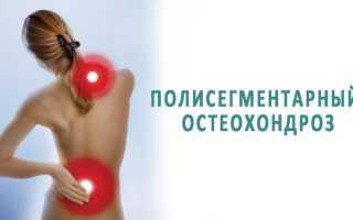 Полисегментарный остеохондроз – причины развития патологии, диагностика и лечение