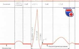 Интервал QT на ЭКГ — норма, и какие патологии вызывают отклонения от нее