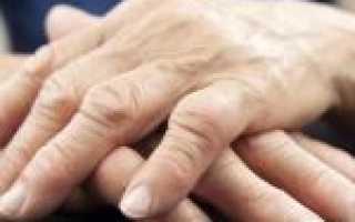 Полиартрит рук – лечение, симптомы и диагностика недуга