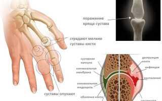 Ревматоидный артрит – лечение в домашних условиях, применение средств нетрадиционной медицины
