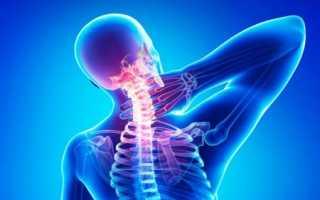 Можно ли греть шею при шейном остеохондрозе?
