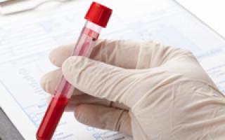 Норма гемоглобина – оптимальные показатели для женщин, мужчин и детей