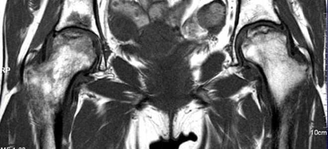 МРТ тазобедренного сустава – что показывает этот метод исследования?