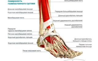 Тендовагинит стопы – принципы диагностики и лечения, симптоматика