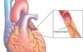 Атеросклероз сосудов сердца – симптомы и лечение этого коварного заболевания