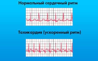 ЭКГ — нарушение ритма и автоматизма сердца, плохая проводимость АВ узла