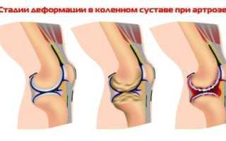 Лечение артроза коленного сустава холодом в домашних условиях