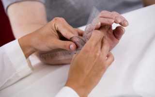 Гигрома на пальце руки – симптомы, диагностика и методы лечения
