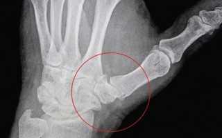 Артроз большого пальца руки – лечение, симптоматика заболевания, способы профилактики