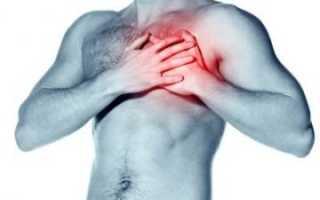 Симптомы при межреберной невралгии – отличие от сердечного приступа