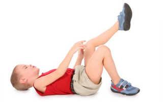 Артрит коленного сустава у детей – этиология, клиническая картина, лечение