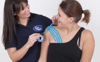 Тейпирование тазобедренного сустава – когда проводится, как действует, показания и противопоказания