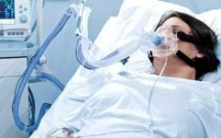Что такое ишемический инсульт и его последствия