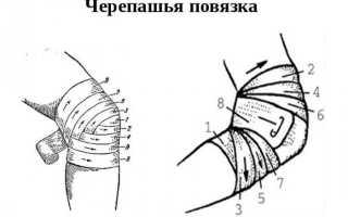 Черепашья повязка на локтевой сустав – как правильно накладывается расходящаяся и сходящаяся повязка