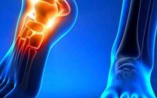 Тендовагинит голеностопного сустава – лечение, диагностика, клиника