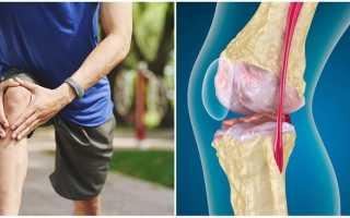 Посттравматический остеоартроз – причины возникновения и отдаленные последствия
