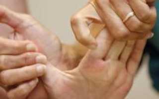 Восстановление руки после инсульта – методы домашней реабилитации