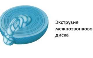 Экструзия диска – первая ступень к образованию межпозвонковой грыжи