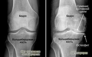 Остеоартроз коленного сустава 2 степени – лечение традиционными и нетрадиционными средствами