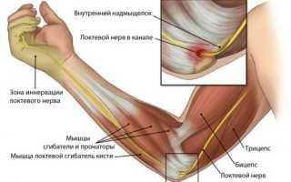 Защемление локтевого нерва – этиология, клиника, диагностика и методы лечения