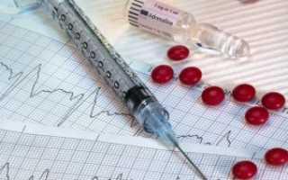Фибрилляция желудочков — отличительные черты, причины развития