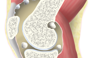 Хондроматоз коленного сустава – причины, симптомы и лечение