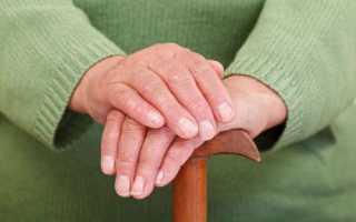 Исход ревматического полиартрита – клиническая картина заболевания, методы лечения
