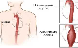 Болит сердце — что делать в домашних условиях и как унять боль?