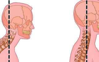 Гиперлордоз шейного отдела позвоночника: причины и симптомы патологии