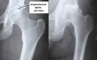 Остеохондроз тазобедренного сустава – этиология, стадии, диагностика, лечение
