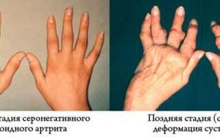 Серонегативный ревматоидный артрит – лечение заболевания медикаментами