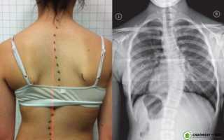 Сколиоз грудной клетки – причины, проявления, методы лечения