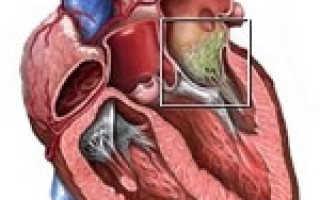 Эндокардит – симптомы и лечение, причины патологии, правила диагностики