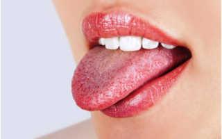 Жжение языка при шейном остеохондрозе – причины симптома