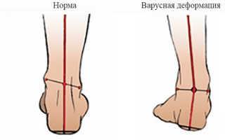 Варусная деформация стопы у детей – симптомы, диагностика, лечение